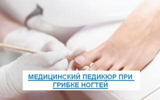 Медицинский педикюр при грибке ногтей: как делать, цена и видео, отзывы