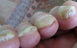 Как отличить грибок ногтей от псориаза ногтей: главные отличия
