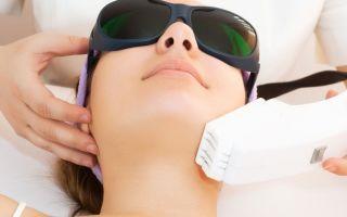 Лазерный пилинг лица: что это такое, отзывы и последствия воздействия лазером