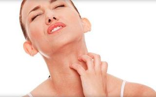 Физиогель (Рhysiogel) — крем для лица при аллергическом дерматите, его аналоги и отзывы