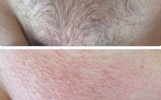 Длина волос перед процедурой шугаринга и какие еще необходимо соблюдать рекомендации, как подготовиться?