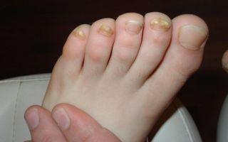 Микоз ногтей: на ногах, руках — лечение и препараты, отзывы, анализ и МКБ 10