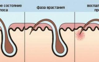 Крем после бритья для кожи лица и других зон на теле для мужчин и женщин от раздражения
