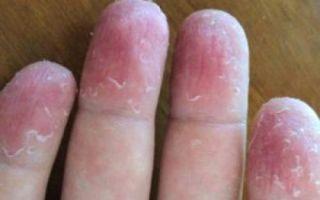 Шелушатся пальцы на руках: почему облезает кожа подушечек и причины у женщин