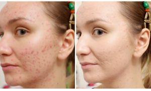 Бодяга для лица: отзывы о геле, свойства маски и порошок с перекисью водорода