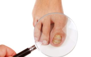 Беременность и грибок ногтей при грудном вскармливании — опасен ли он?