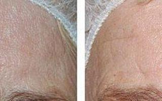 Газожидкостный пилинг лица: что это такое, отзывы косметологов и противопоказания к барофорезу