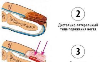 Лечение грибка на ногах в домашних условиях: быстрое и эффективное, препараты и народные средства