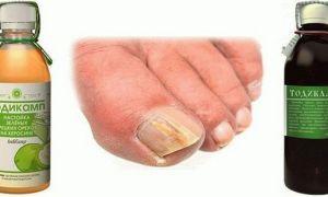 Лечение грибка ногтей керосином: рецепты и противопоказания
