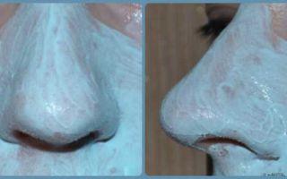11 лучших черных масок для кожи лица: Нивеа, Комплимент, Шисейдо, Черный бархат, сколько держать блэк средство
