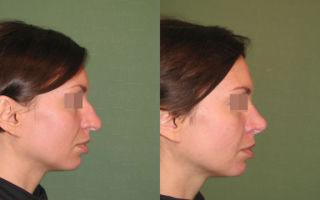 Безоперационная ринопластика носа: отзывы о коррекции нитями и как делается пластика филлерами?