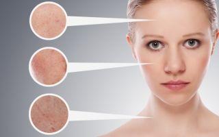 Купероз на лице: лечение и препараты, эффективные средства в аптеке