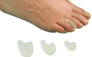 Межпальцевые разделители для пальцев ног ортопедические: как выглядят распорки силиконовые, растяжители и прокладки