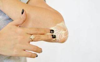 Шелушатся локти: почему сохнет и облазит кожа на левой руке, причины шелушения у женщин