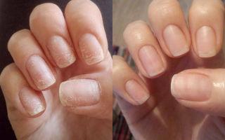 Укрепление ногтей в домашних условиях: рецепты маски, чем укрепить и зубная паста против ломкости
