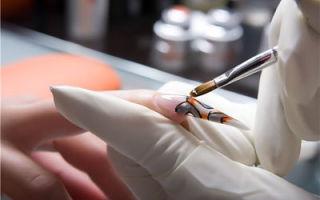 Грибок ногтей после наращивания — причины и лечение