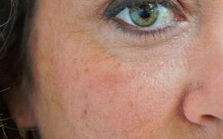 Как убрать пигментные пятна на лице: способы удалить пигментацию в домашних условиях