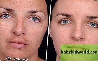 Кальция хлорид для лица — пилинг: отзывы косметологов о голливудской чистке хлористым в домашних условиях