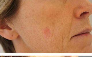 Удаление пигментных пятен лазером: отзывы о лазерной шлифовки на лице, можно ли удалить пигментацию летом?