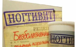 Антиногтегриб: преимущества и недостатки препарата, правила применения