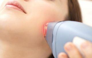 Лазерная эпиляция: на сколько хватает эффекта и что это такое, держится ли бикини после первой процедуры?
