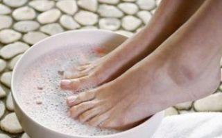 Лечение грибка ногтей в домашних условиях ног и рук: народные средства (уксус, сода, перекись, прополис, чеснок)