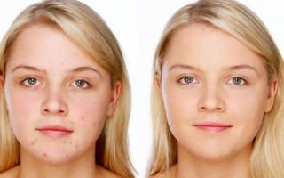 Маска из Полисорба для лица: отзывы о рецепте от прыщей, как делать в косметологии для очищения кожи и от черных точек