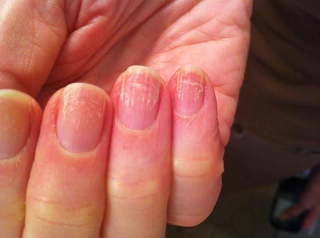 Грибок на пальцах рук: фото, лечение, как выглядит, симптомы, начальная стадия, мазь, народные средства, что делать, отзывы
