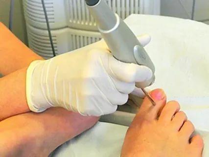 Удаление ногтя на ноге при грибке - все средства, как и чем