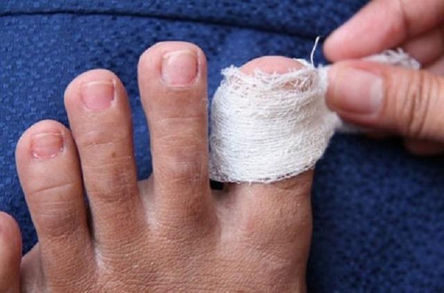 Чеснок от грибка ногтей на ногах: отзывы и способы лечения