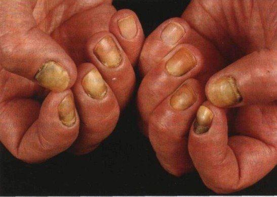 Кандидозный грибок ногтей - причины, симптомы и лечение