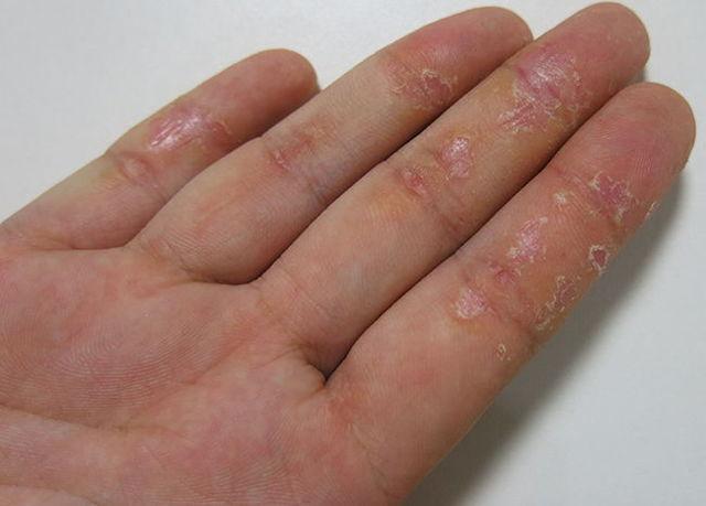 Грибок на руках: фото, лечение, начальная стадия, в домашних условиях, как выглядит, средства, симптомы, отзывы, препараты, мазь