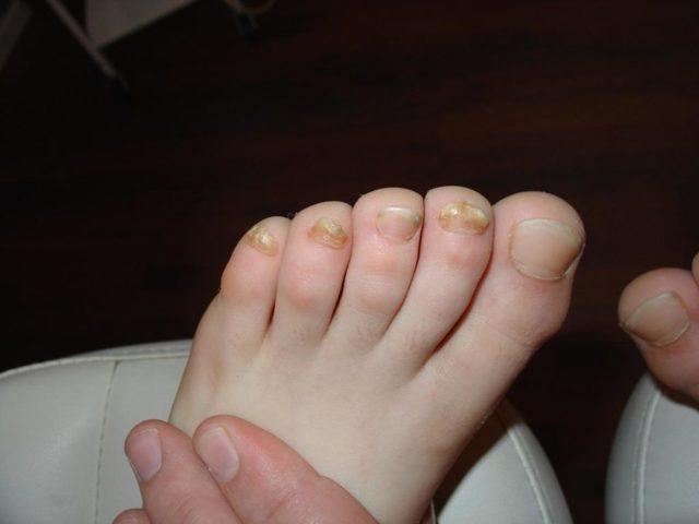 Доместос от грибка ногтей: лечение, меры предосторожности, отзывы