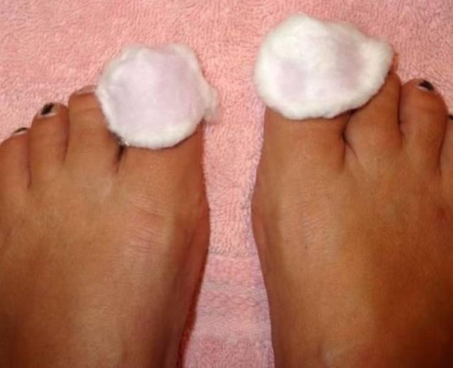 Индийский лук от грибка ногтей - рецепты и способы применения
