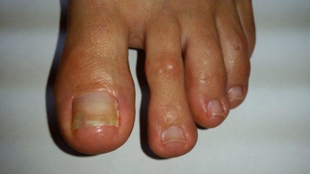 Термикон от грибка ногтей: форма, показания и противопоказания
