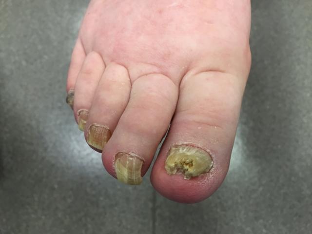 Лечение онихомикоза ногтей на ногах и руках: препараты недорогие и эффективные, отзывы, в домашних условиях, схемы, народные средства