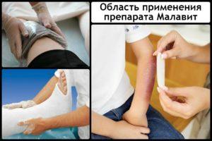 Малавит при грибке ногтей - инструкция и отзывы
