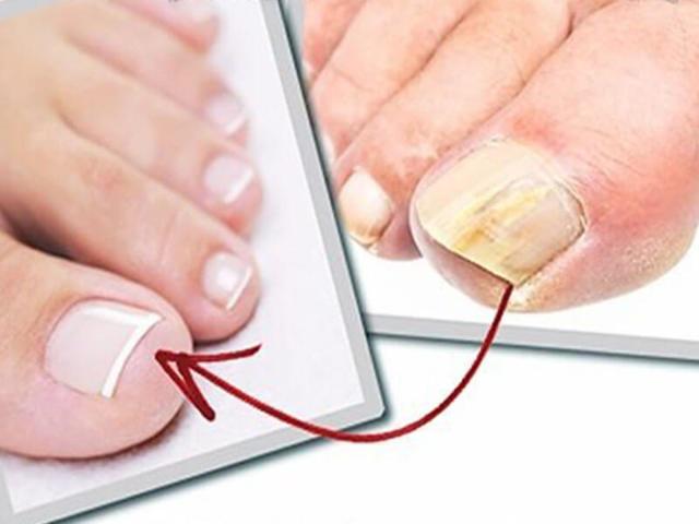 Чайный гриб от грибка ногтей на ногах: полный курс лечения