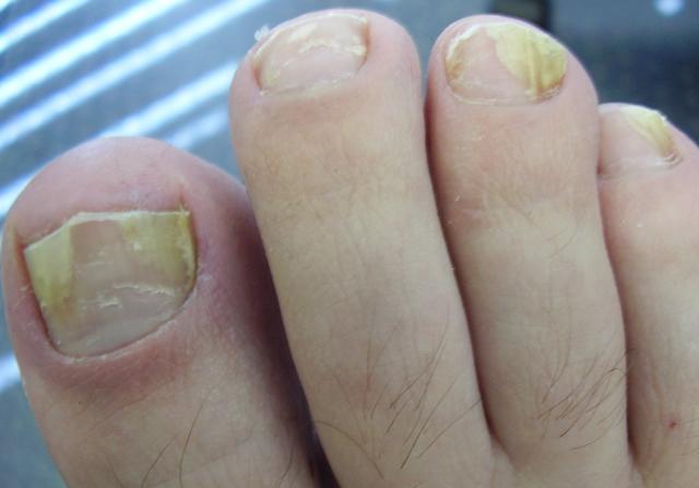 Йод от грибка ногтей на ногах - способы применения и отзывы