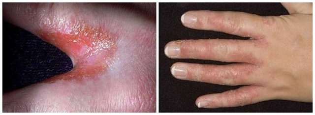Дрожжевой грибок на руках: лечение, фото, причины, симптомы