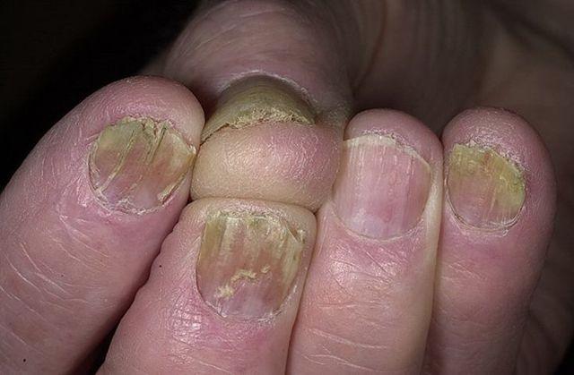Раствор от грибка ногтей - лучшие из них и рецепты приготовления