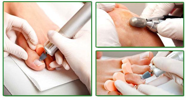 Медицинский педикюр при грибке ногтей: как делать, цена, видео, отзывы