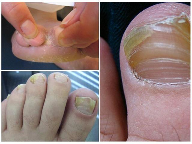 Грибок ногтей - психосоматика как причина заболевания