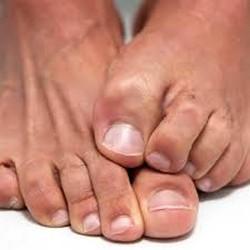 Средство от грибка ногтей на ногах: обзор лучших, эффективных и дешевых препаратов, народные средства, отзывы