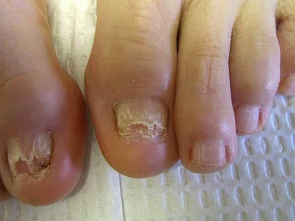 Лечение грибка ногтей лазером: отзывы, цена (сколько стоит), противопоказания, видео