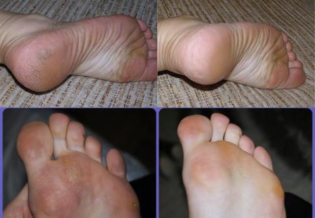 Полная профилактика грибка стопы на ногах от А до Я