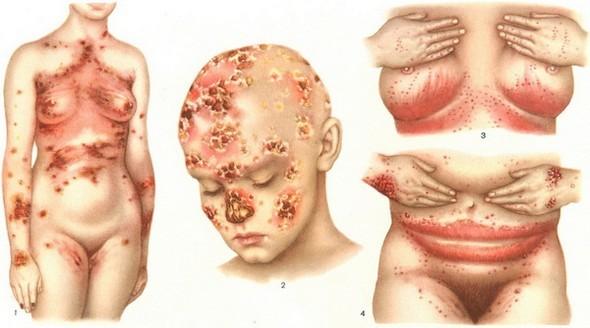 Межпальцевая грибковая эрозия: причины и лечение