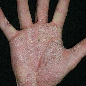Мицелий патогенного гриба у человека (споры): что это такое, на коже, если обнаружены, как лечить
