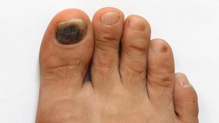 НИТРОФУНГИН от грибка ногтей - инструкция, цена и отзывы
