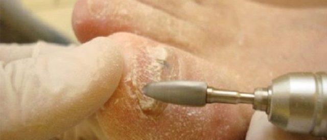 Аппаратная чистка и обработка ногтей от грибка